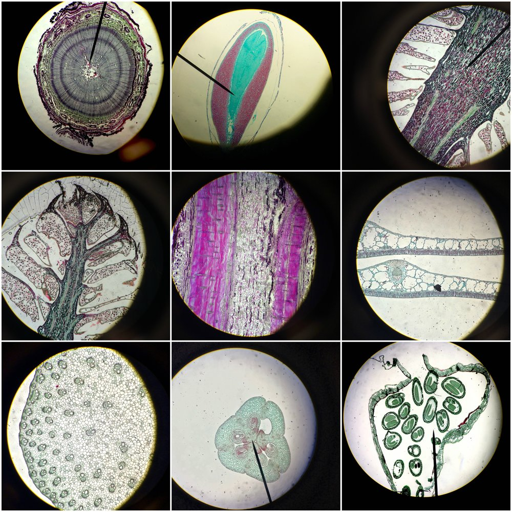 The first five pictures are of evergreen trees, and the next four pictures are of flowering plants viewed through a light microscope and photographed on my iPhone during Biology lab.