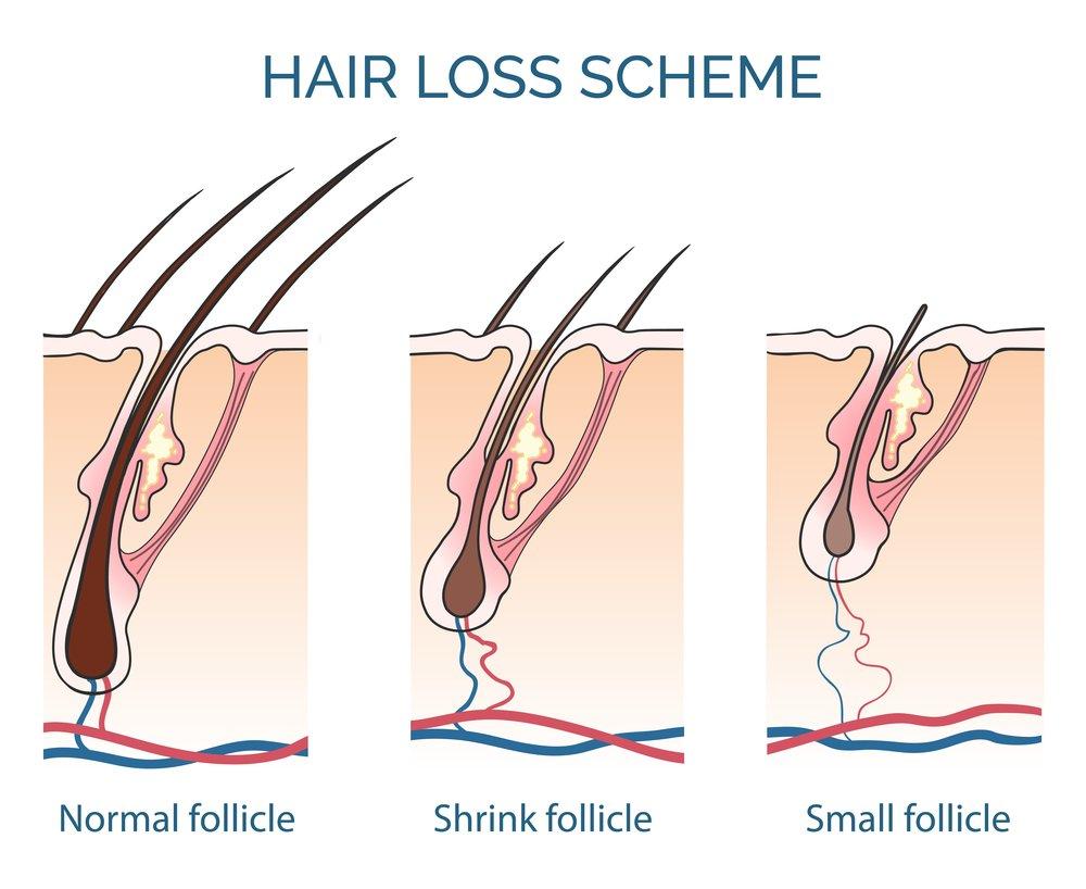 Hair Loss Scheme.jpg