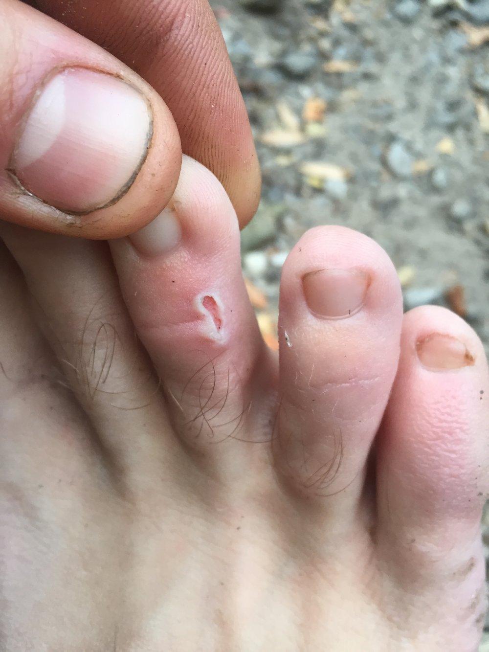 Spencer's smallest blister