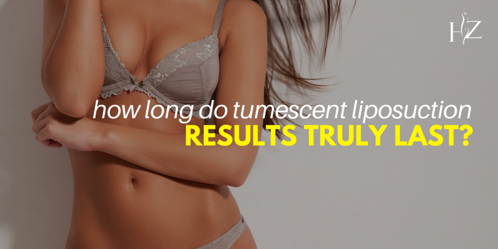 how long does tumescent liposuction results last, liposuction orlando