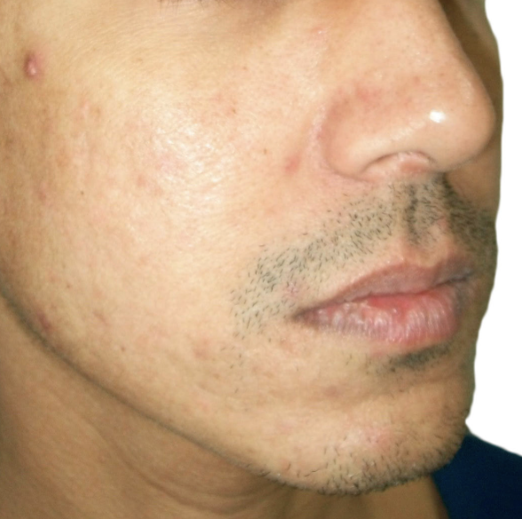 AFTER 4 TREATMENTS