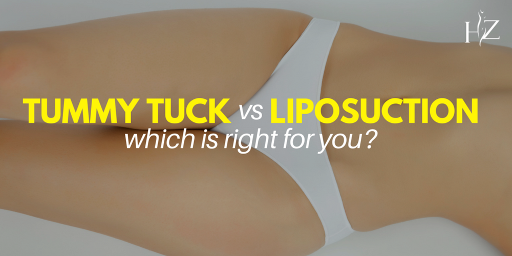 liposuction vs tummy tuck, what is the difference between liposuction and tummy tuck