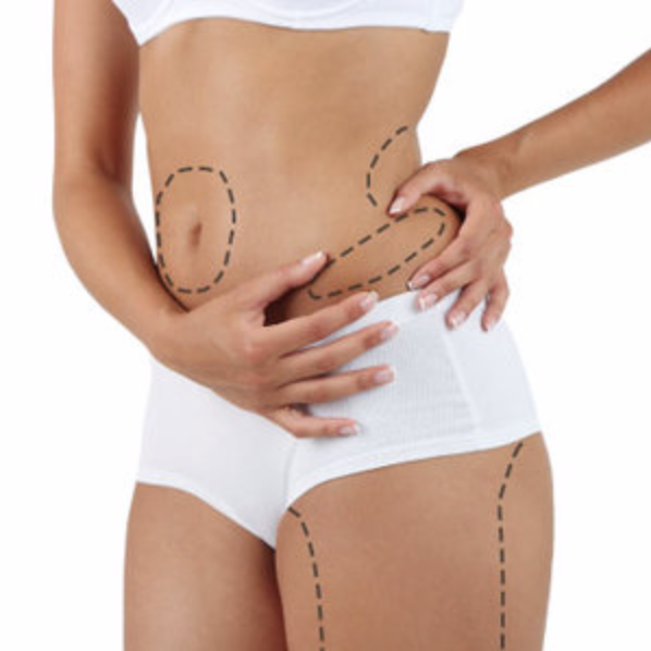 body plastic surgery in orlando
