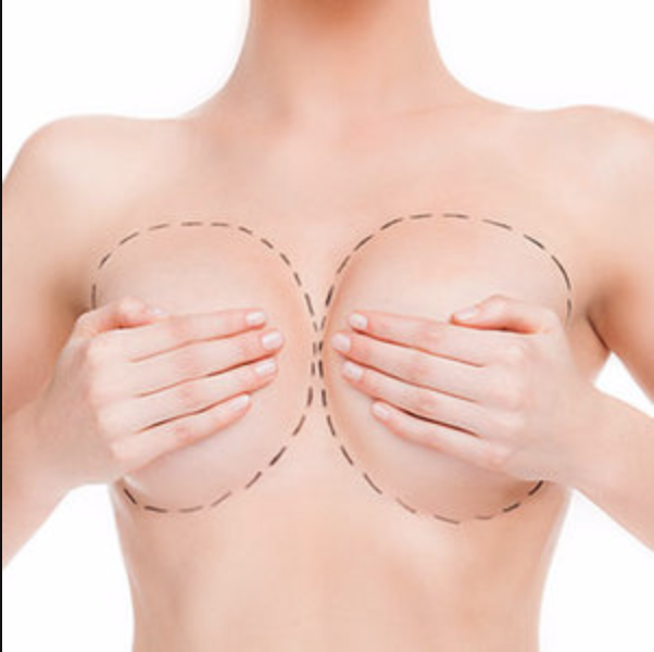breast plastic surgery in orlando