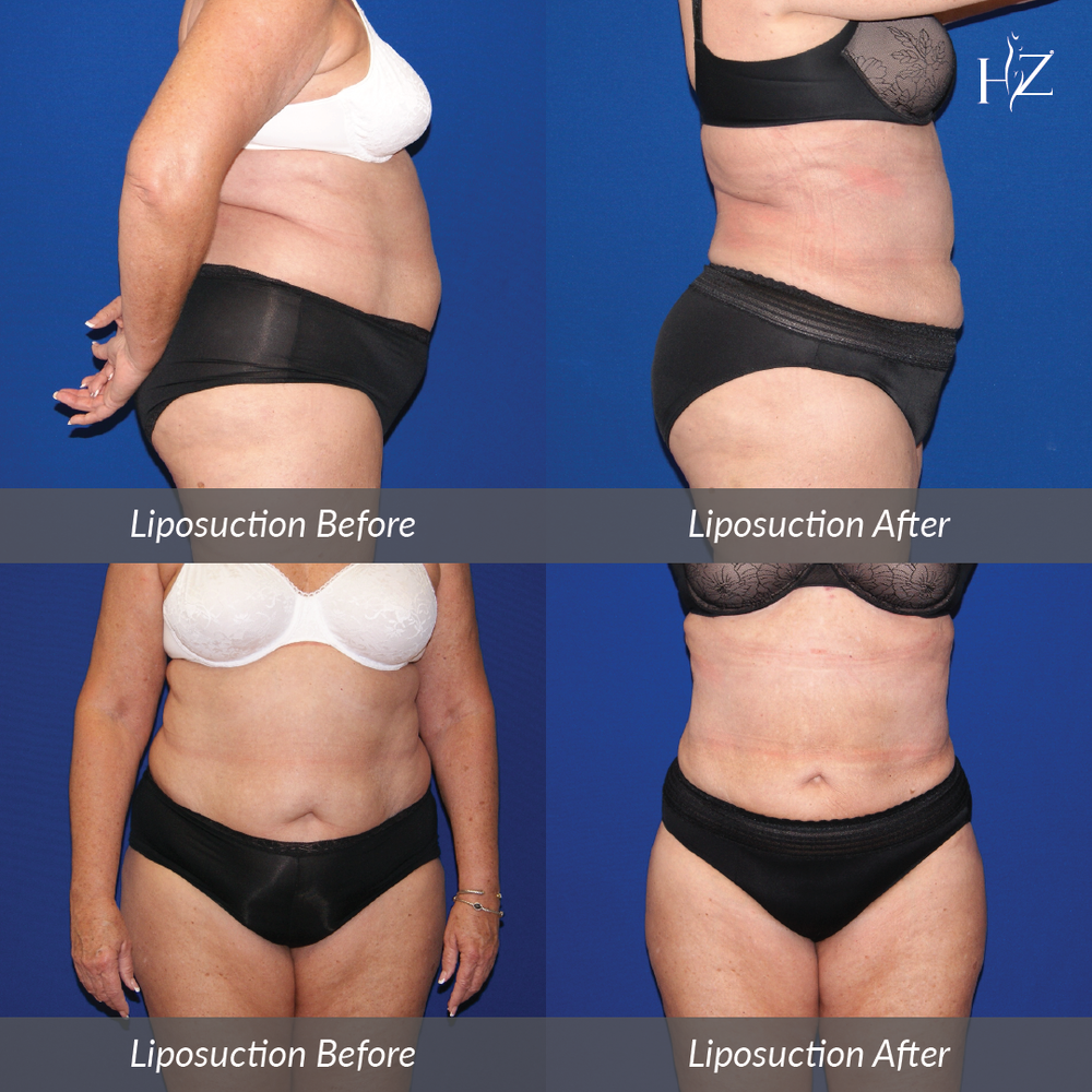 liposuction before and after, liposuction orlando, plastic surgeon orlando, plastic surgery before and afters