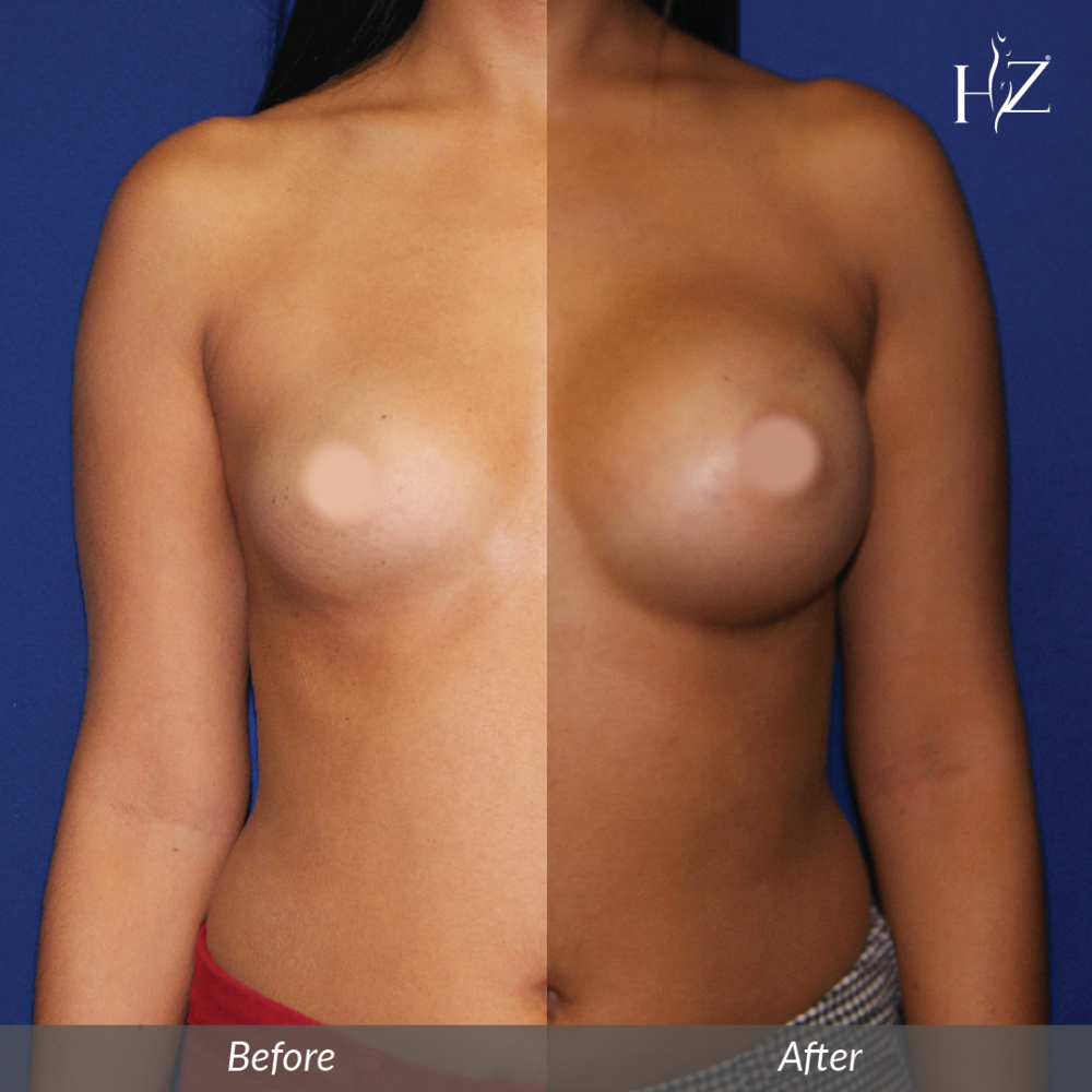 breast augmentation before and after, breast augmentation orlando, plastic surgeon orlando