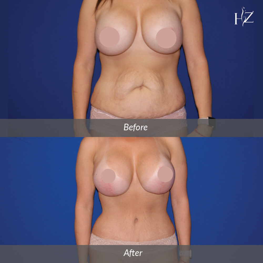 mommy makeover before and after, mommy makeover orlando, plastic surgeon orlando, plastic surgery before and afters