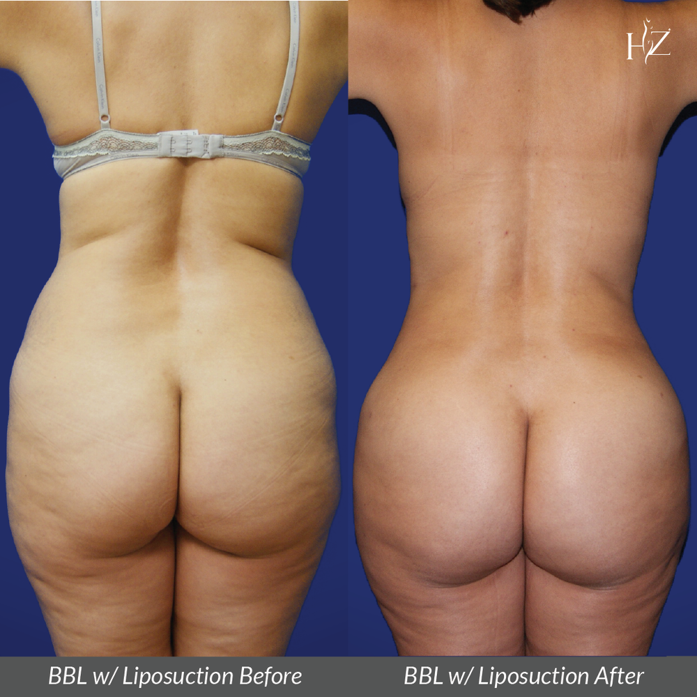 brazilian butt lift before and after, brazilian butt lift orlando, plastic surgeon orlando, plastic surgery before and afters