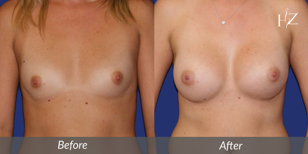 Breast Augmentation Performed By Board Certified Surgeon, Dr. Z.