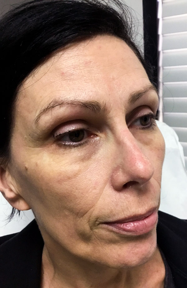 BEFORE (Vollure, Voluma, Dysport, & Sculptra)