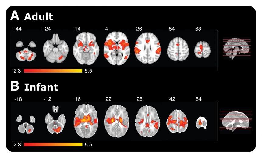 نشاط دماغي