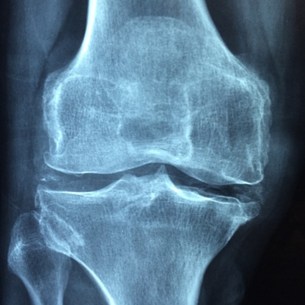 knee-joint.png