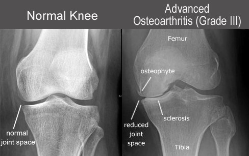 Imaging of an advanced arthritic knee with NO knee pain