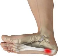 Foot pain.jpg
