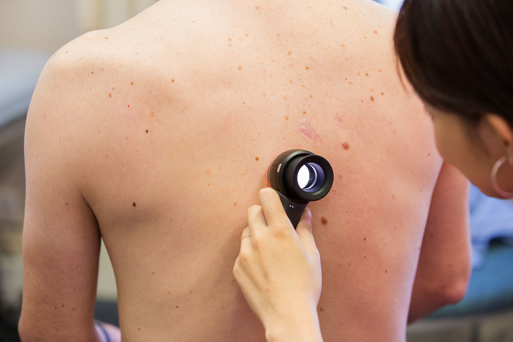 Crawford Medical Centre in Howick, Auckland provides comprehensive mole mapping.  Contact us today to schedule your appointment with one of our Doctors.