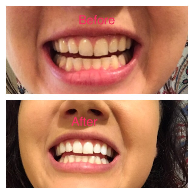 Teeth Whitening Semi Permanent Cosmetic Makeup And More