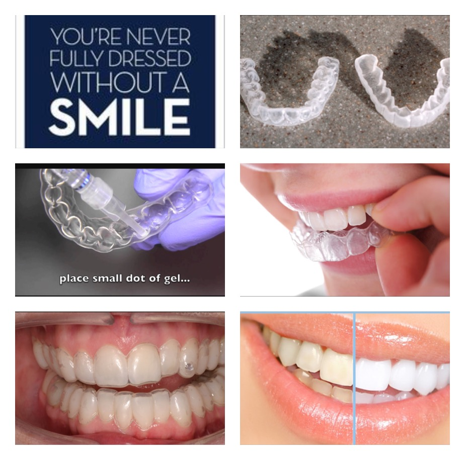 Teeth Whitening Color Me Pretty Advanced Microblading