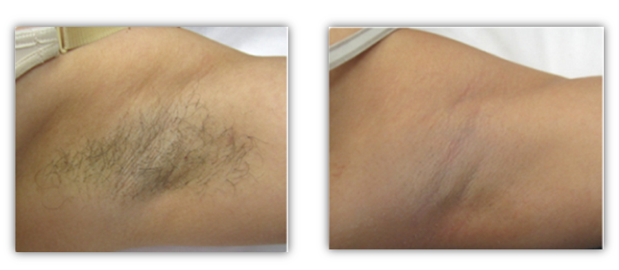 Underarm - Before & After