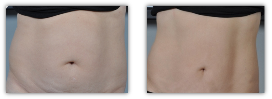 Before & After Skin Tightening Treatment
