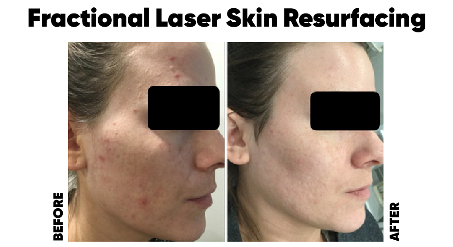 After years of suffering with and picking at my acne, Fractional skin resurfacing treatments have truly transformed my skin. Even after one treatment my scarring and acne improved remarkably and I had so much more confidence in my skin. After three treatments nearly all of my scarring and hyper pigmentation is gone. Kinga put me at ease about the treatment process (especially since she has had it herself!) and she helped me to have smooth, clear, scar free skin I finally feel comfortable in again. I'm so grateful for this treatment,  Thank you Kinga!    Sarah B.
