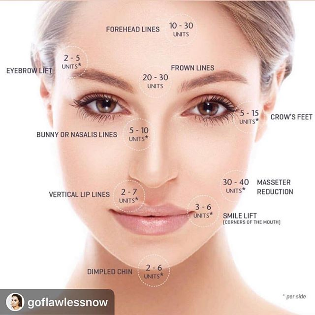 || How much Botox will you need❓|| 💉 The optimal amount of Botox can truly only be determined during a consultation with a qualified injector. However, this image gives a basic understanding of how many units, on average, are used for each treated area. • • • • • #thedermlabrx #botox #allergan #allerganambassador #nomorewrinkles #gilbertinjector #phoenixinjector #chandlerinjector #newtochandler #comingtochandler #antiaging #flawlessskin #bestself #dermalfillers #gatherloft #bestinjector #beautytips #chandlerskincare #gilbertskincare #antiwrinkles #smoothskin