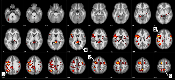 Regions of the brain that showed a statistically significant difference between patients with schizophrenia and patients without it. (Arrow 1 identifies the precentral gyrus, or the motor cortex, and arrow 5 marks the precuneus, which involves processing visual information.)