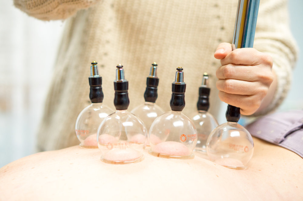 cupping image 1.jpg