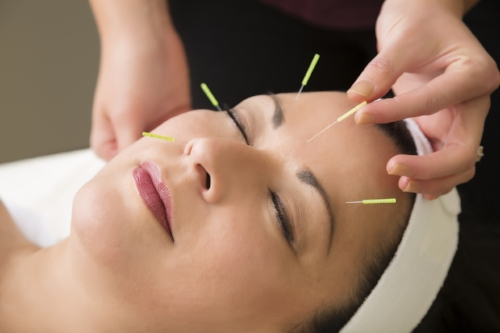 Facial acupuncture, cosmetic acupuncture, Portland, Oregon, Turning Pointe Acupuncturetty Images