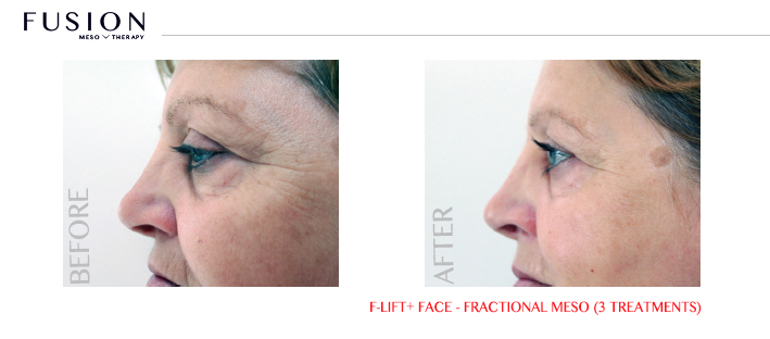 Fusion-BA-F-LiftFace-Fractional-Meso-3-treatments.jpg