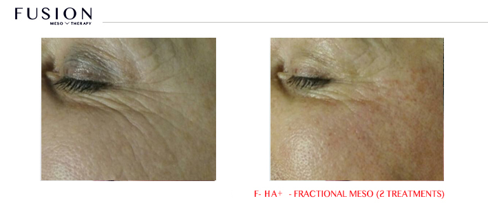 Fusion-BA-HA-Fractional-Meso-2-treatments.jpg