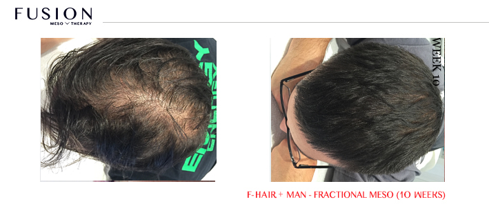 Fusion-BA-HAIR-MAN-Fractional-Meso-10-weeks.jpg