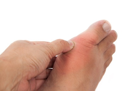 What Is Causing My Big Toe Joint Pain