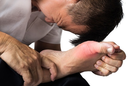 treatment for gout pain - annapolis foot doctor, gout specialist