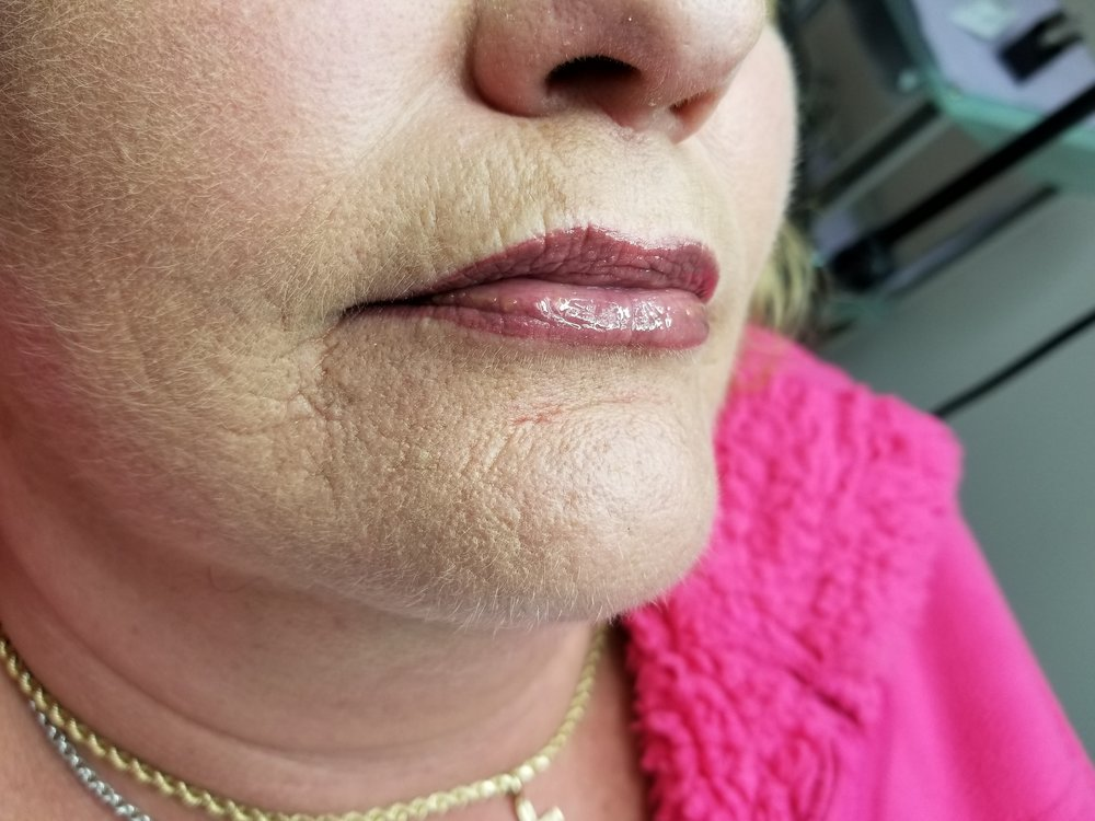 Healed 1 - Lips.jpg