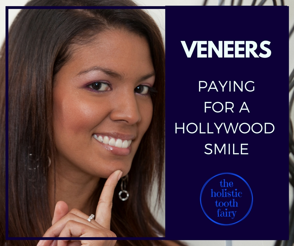 What you need to know before getting veneers, caps and cosmetic dentistry