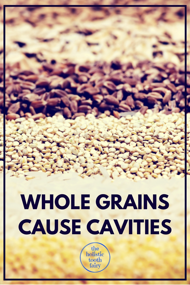 Whole grains contain phytic acid which stops our body from digesting the minerals in our food, that we need for strong healthy teeth and gums.