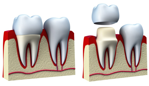dental-crowns-explained.jpg