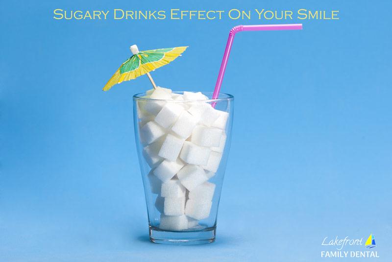sugary-drinks-effect-on-smile.jpg