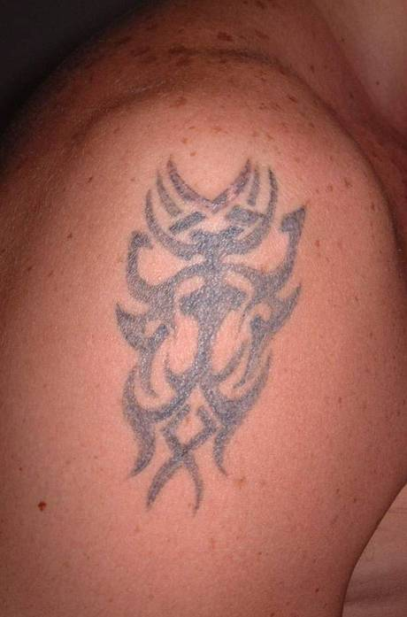 Tattoo shoulder - Pre treatment.jpg