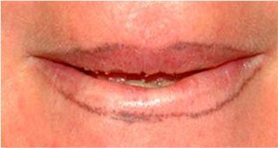 Lips after 1 session 532nm.png