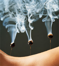 Acupuncture-Moxibustion.jpg