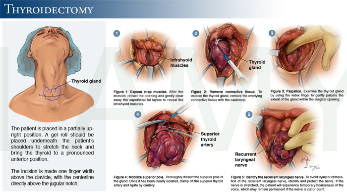 Copy of Thyroidectomy
