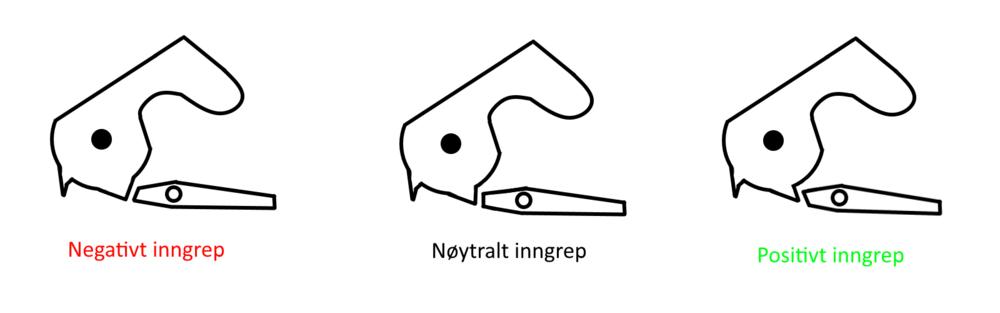 inngrep.png