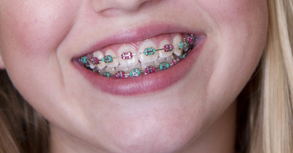 Metal/Traditional Braces
