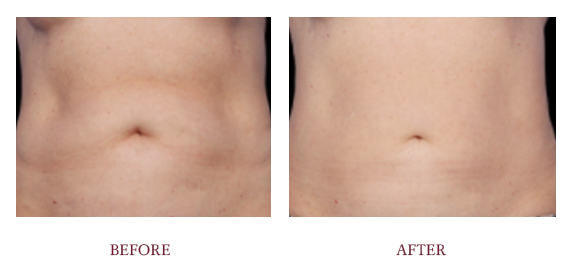 Before and After Coolsculpting 1.png
