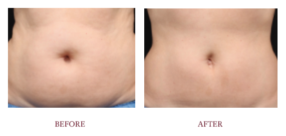 Before and After Coolsculpting 2.png