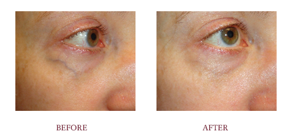Before and After LaserLift1.png