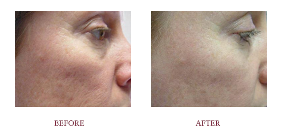 Before and After LaserLift2.png