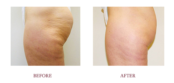 Before and After Template Velashape1.png