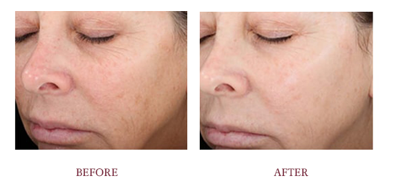 Before and After Vitalize Peel.png